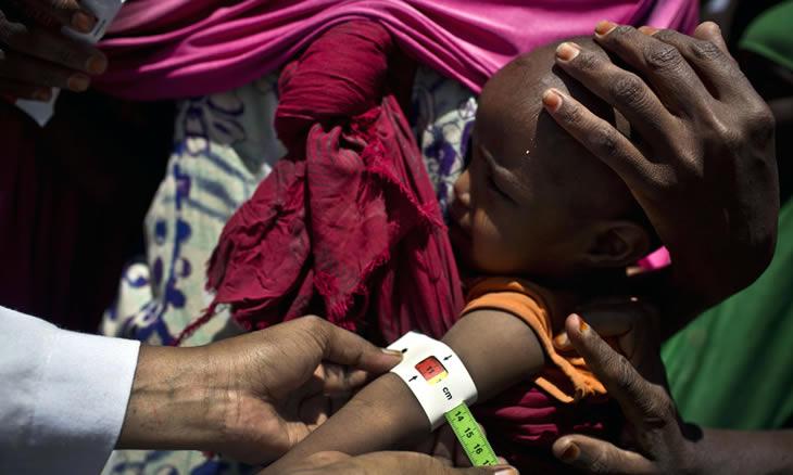 SADC: 8,4 milhões de crianças poderão sofrer de desnutrição aguda este ano